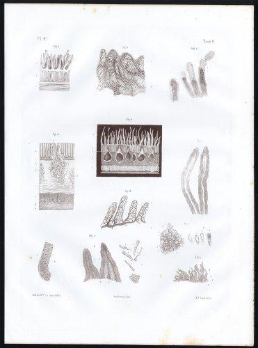 Antique Anatomy Print-Microscope-Intestinal Villi-Structure-Pl. 47-Bourgery-1844