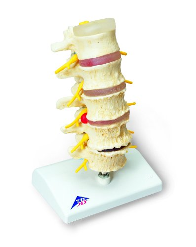 "3B Scientific A795 Stages of Disc Prolapse and Vertebral Degeneration Model, 8.7"" Height"
