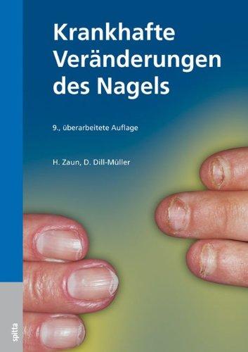 Fingernu00e4gel - Was Flecken Und Rillen Bedeuten