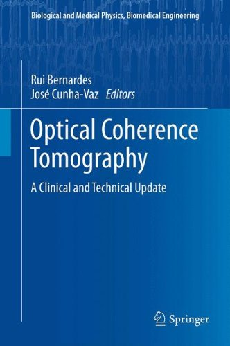 Optical Coherence Tomography: A Clinical And Technical Update (Biological And Medical Physics, Biomedical Engineering)