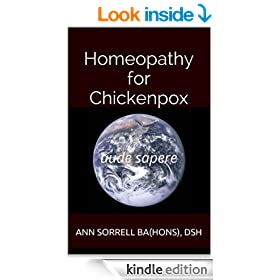 Homeopathy for Chickenpox (aude sapere Book 5)
