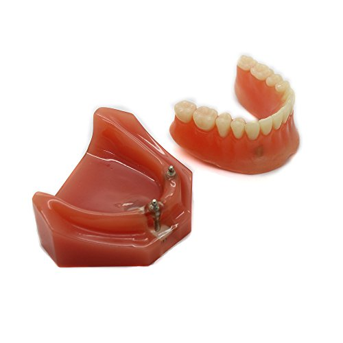 Dental Model #6007 01 - Overdenture Inferior with 2 Implant Demo Model (Dental Implant Model compare prices)