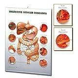 Digestive System Diseases: 3D Lenticular Chart Plastic Styrene