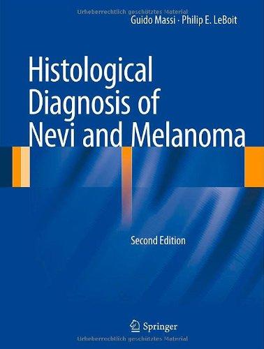 pathology outlines skinmelanocytic tumor