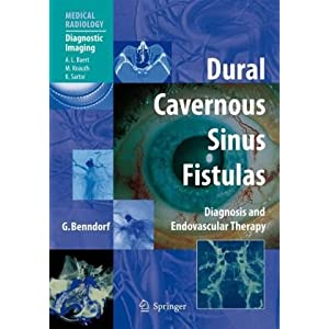 Dural Cavernous Sinus Fistulas: Diagnosis and Endovascular Therapy (Medical Radiology / Diagnostic Imaging)