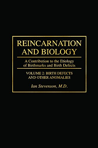 Reincarnation and Biology: A Contribution to the Etiology of Birthmarks and Birth Defects