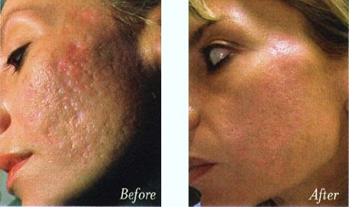 Biomedic facial or peel