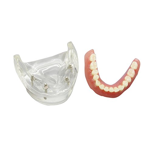 Dentalmall® 1 Pc Dental Teaching Model Overdenture Inferior with 4 Implants Demo #6002-02 (Dental Implant Model compare prices)