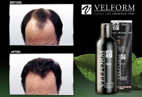 Velform Hair Grow Tonic Stimulates Hair Growth Stop Hair Loss Hair Fall 200 Ml. x 2 Bottles