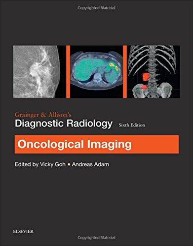 Grainger & Allison's Diagnostic Radiology: Oncological Imaging, 6e