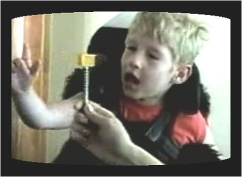 Developmental Components of Eye-Hand Coordination in the Child with Special Needs