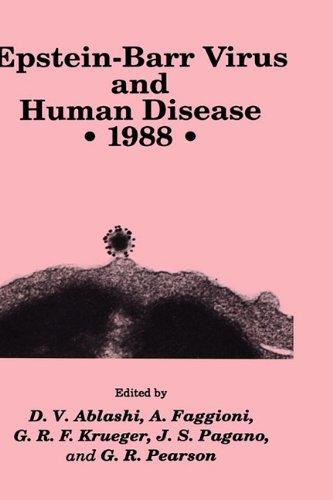 the description of the epstein barr virus ebv