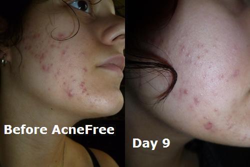 bonne creme contre l'acné youtube