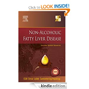 thesis on alcoholic liver disease