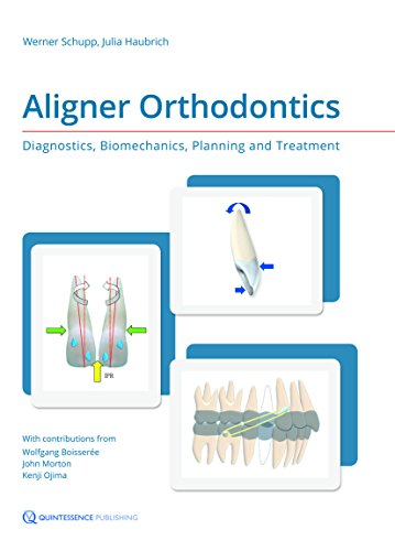 Aligner Orthodontics: Diagnostics, Biomechanics, Planning and Treatment