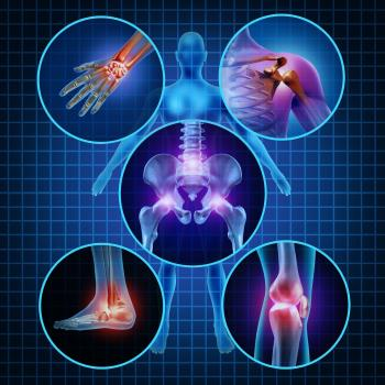 Arthrose und Gelenkschmerzen