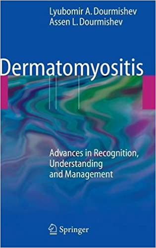 patient with dermatomyositis essay Now she wants other patients to take heart from her story one thing was an autoimmune disease called dermatomyositis i've fought off cancer eight times.