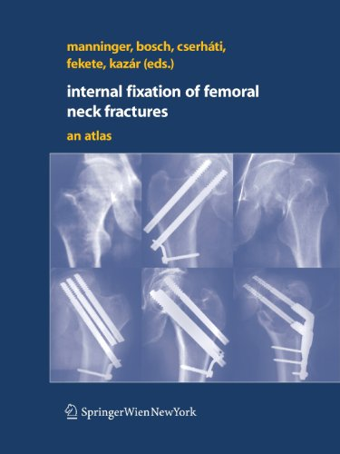 Internal fixation of femoral neck fractures: An Atlas