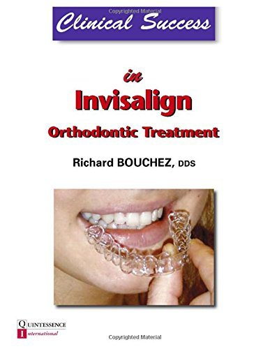 clinical-success-in-invisalign-orthodontic-treatment-by-richard-bouchez-2011-02-01