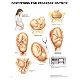 Conditions for Cesarian Section Poster