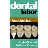 Light-flooded Anterior Crowns (dental lab technology articles)