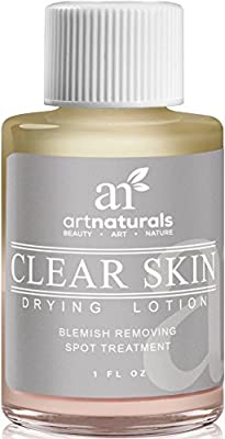 Art Naturals Clear Skin Drying Lotion 1fl oz - Acne Spot Remover Treatment for Fast Drying - Shrinks Whiteheads & Fades Out Face Blemishes