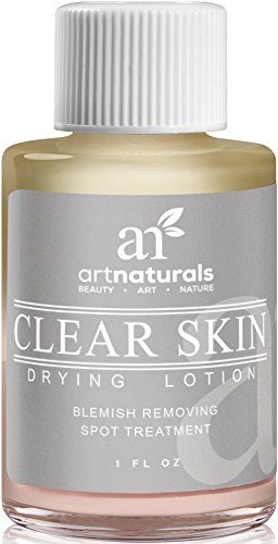 Art Naturals Clear Skin Drying Lotion 1fl oz - Acne Spot Remover Treatment for Fast Drying - Shrinks Whiteheads & Fades Out Face Blemishes (Natural Skin Care For Acne compare prices)