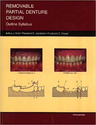 removable partial dentures rpd study The aim of this study was to investigate the clinical outcome of removable partial dentures (rpds) designed to minimize denture mobility during function.