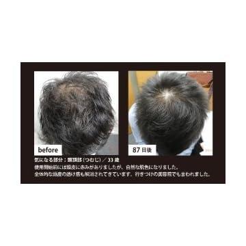 【育毛サプリメント】fuerza ノコギリヤシミレットサプリ【2ヵ月お試しコース】※初めての方限定