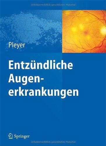 Entzündliche Augenerkrankungen (German Edition)
