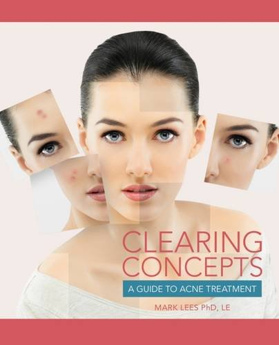 Clearing Concepts: A Guide to Acne Treatment (Conflict Resolution)
