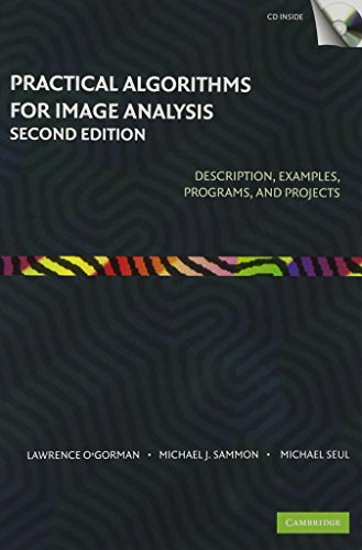 Practical algorithms for image analysis: description, examples, and code