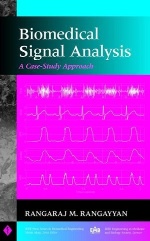 Biomedical signal analysis: a case-study approach