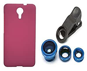Toppings Hard Case Cover With Universal Clip Lens For Micromax Canvas Xpress 2 E313 - Pink