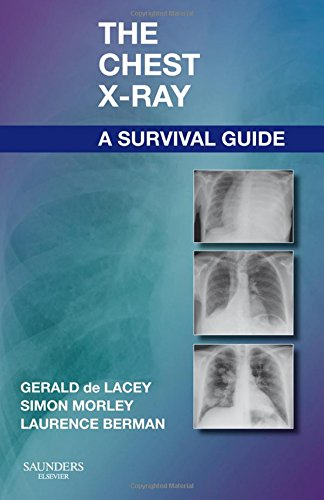 The Chest X-Ray: A Survival Guide, 1e