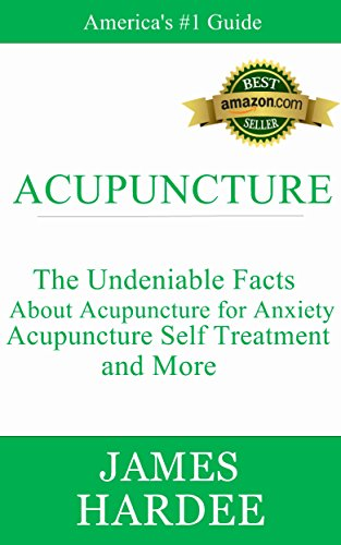 acupuncture-the-undeniable-facts-about-acupuncture-for-anxiety-acupuncture-self-treatment-and-more