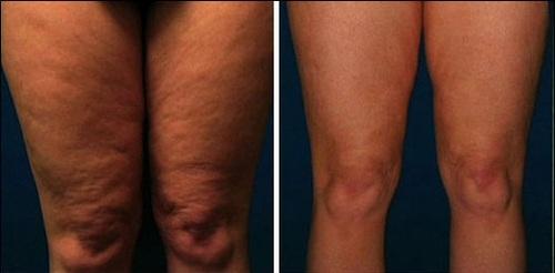 Honest Reviews Skinny Cream 6oz Clinically Proven