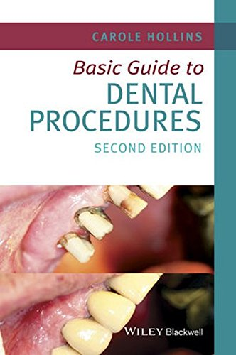 Basic Guide to Dental Procedures (Basic Guide Dentistry Series)