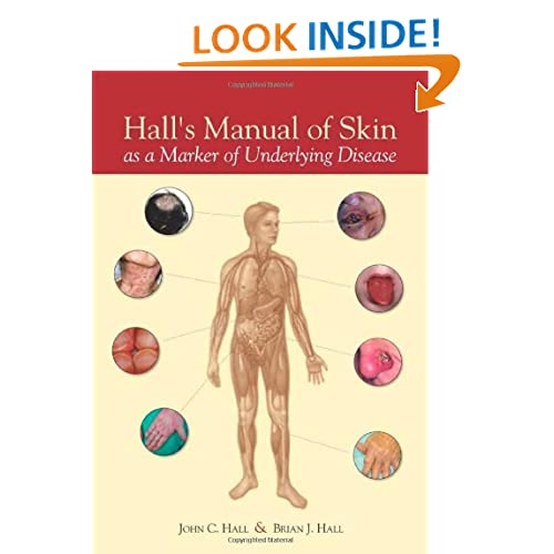 Hall's Manual of Skin As a Marker of Underlying Disease John C. Hall MD and Brian J. Hall MD