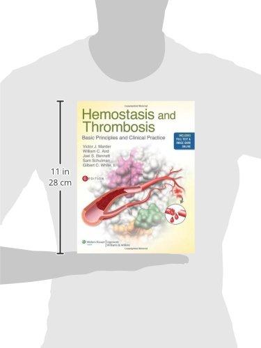 Hemostasis and Thrombosis