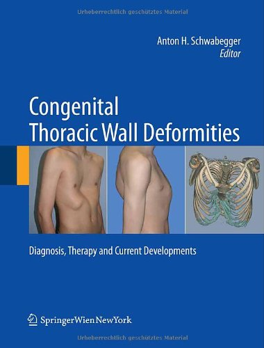 Congenital Thoracic Wall Deformities: Diagnosis, Therapy And Current Developments front-830673