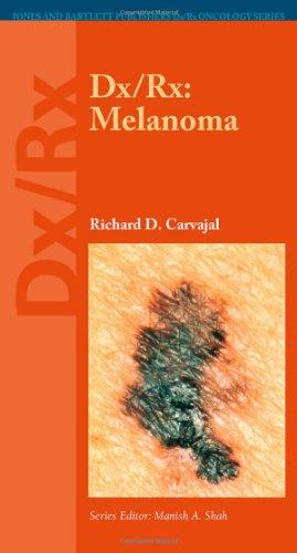 Dx/Rx: Melanoma (Dx/Rx Oncology Series)