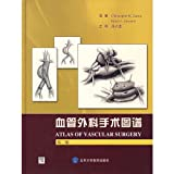 img - for Vascular surgery atlas - (second edition)(Chinese Edition) book / textbook / text book
