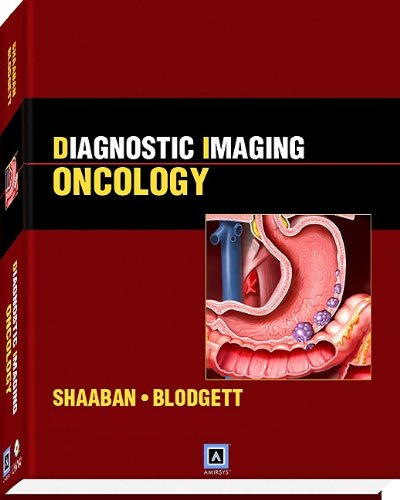 Diagnostic Imaging: Oncology: Published by Amirsys® (Diagnostic Imaging (Lippincott))
