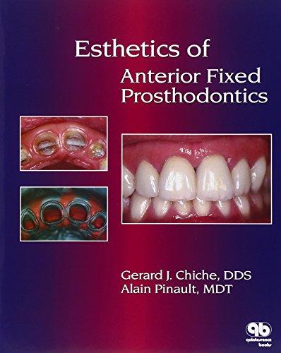 Esthetics of Anterior Fixed Prosthodontics PDF