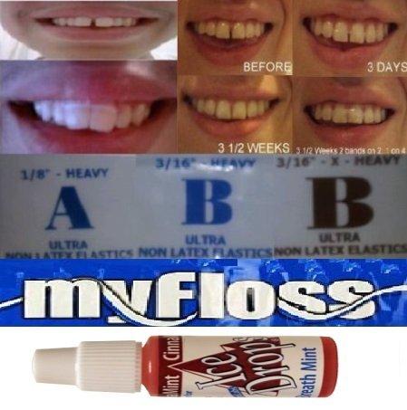 orthodontic-gap-teeth-bands-with-floss-breath-freshener-3-sizes-3-16-x-heavy-3-16-heavy-and-1-8-heav