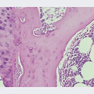 Human Spongy Bone Microscope Slide, sec.
