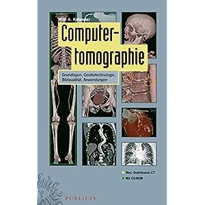 Computertomographie: Grundlagen, Gerätetechnologie, Bildqualität, Anwendungen