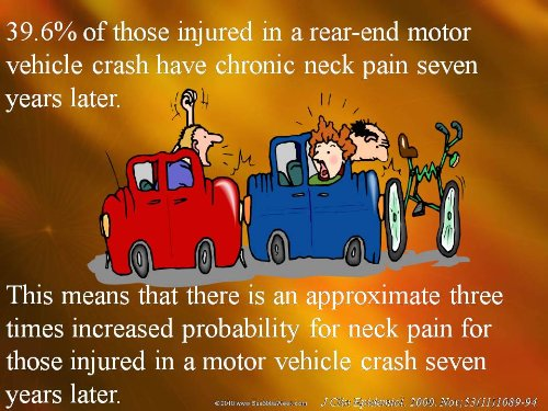 Chiropractic - Personal Injury Powerpoint Lecture - 54 Slides front-149797