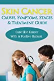 Skin Cancer Causes, Symptoms, Stages & Treatment Guide: Cure Skin Cancer With A Positive Outlook (Signs of Skin Cancer, Symptoms of Skin Cancer, Treatment ... of Skin Cancer, Stages of Skin Cancer)